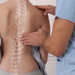 skolioza diagnoza